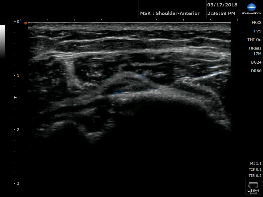 Repair Joint Damage with Prolotherapy  Dr Fred G Arnold NMD